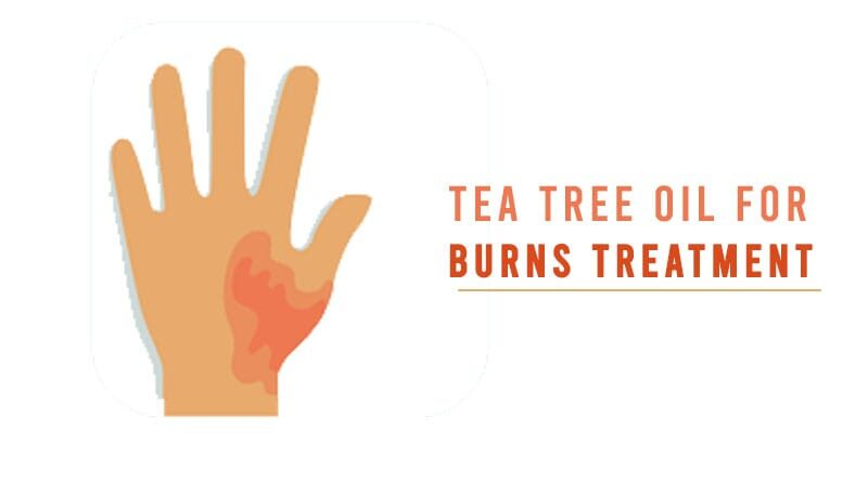 Tea Tree Oil for Burns