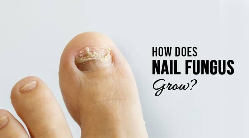 How Does Nail Fungus Grow