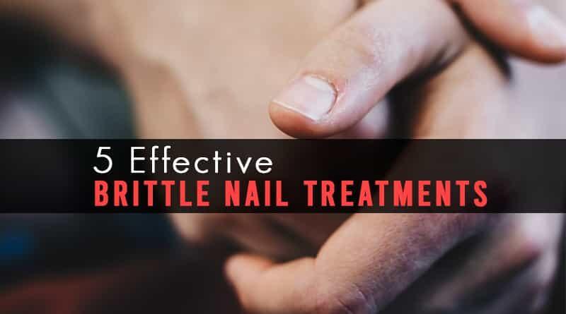 Brittle Nail Treatments