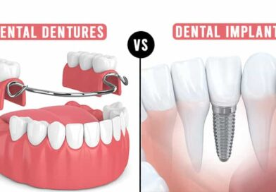 Dental Dentures vs Implants