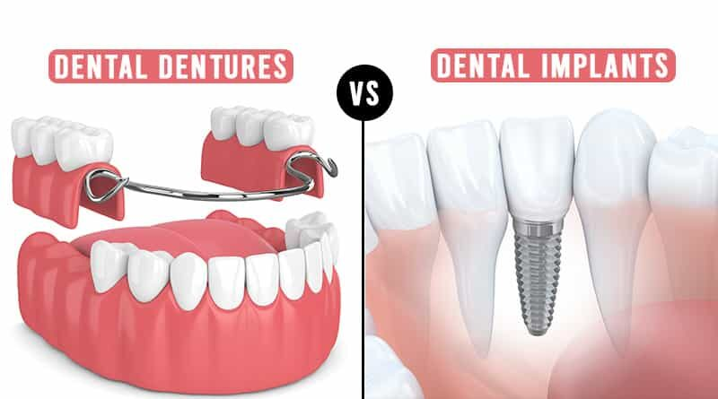 Dental Dentures vs Implants